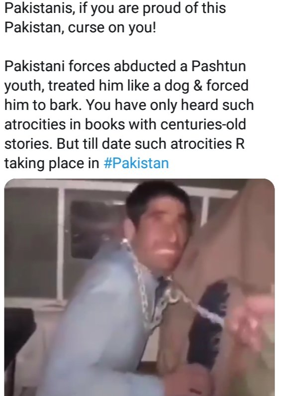 Shame on Pakistan This is the condition of the people who say truth!! #Pakistan #ShameOnPakistan #minorities #shiagenocide #shialivesmatter #HazaraLivesMatter #ProudIndian #loveindia