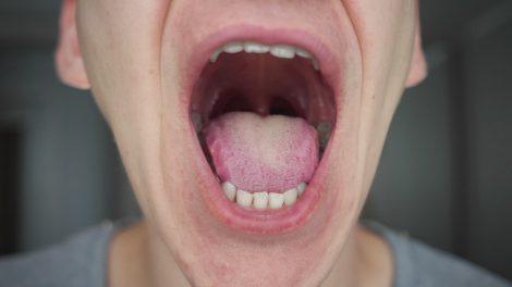 Scoperto sintomo insolito del Covid19 e riguarda la lingua - https://t.co/2xtBUxw8VJ #blogsicilia #covid19