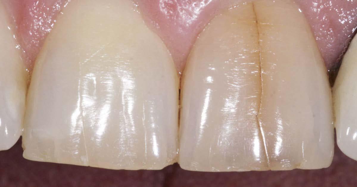 DentalPBRN photo