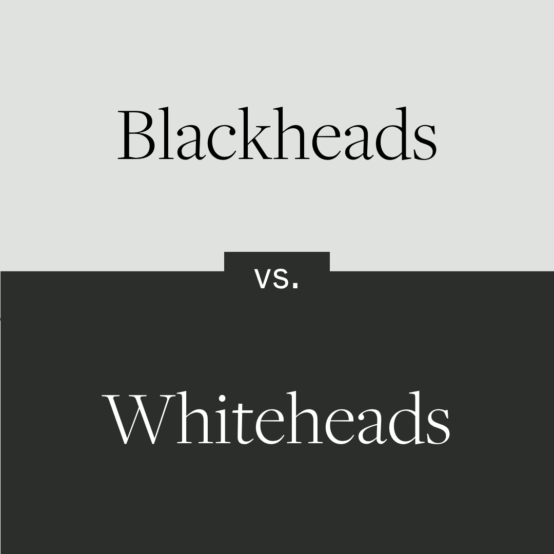 Do you know the difference between blackheads and whiteheads? Find out more ⬇️