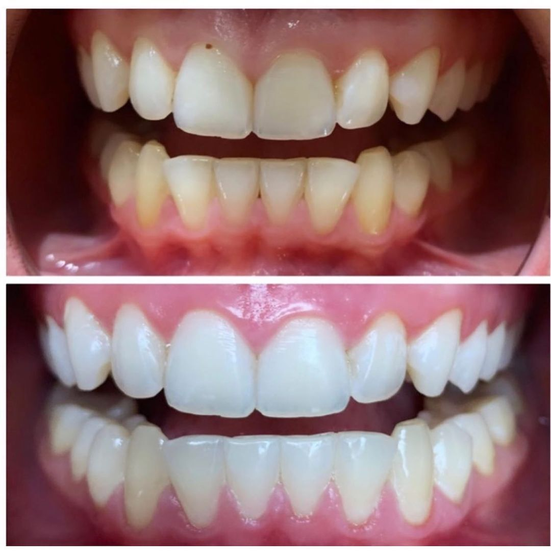 Signature Treatment will whiten your teeth in less than 60 minutes. Get the smile you always wanted with one clink away   #teethwhitening #instantresults #vegan #crueltyfree #nofilter #nopain #tripletreatment #beautytips #trendingnow