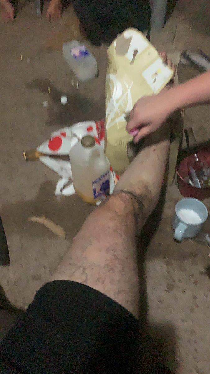 Truth or  dare. I'm getting my singular leg shaven #TruthOrDare