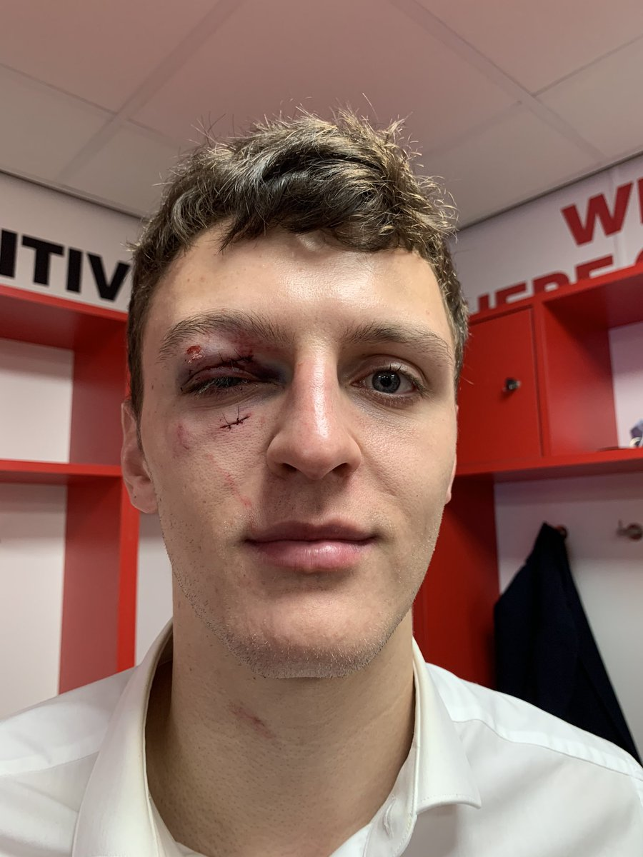 Battered and bruised @Daelfry1