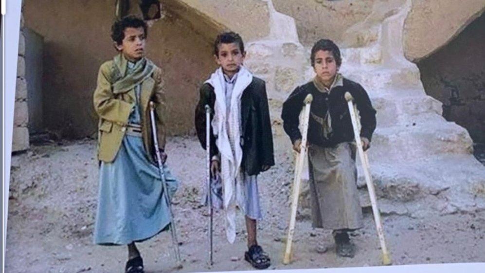 الغام مليشيا الحوثي الإرهابية الطائفية قتلت الألآف من الأبرياء المدنيين في #اليمن  #HouthiTerrorismInYemen