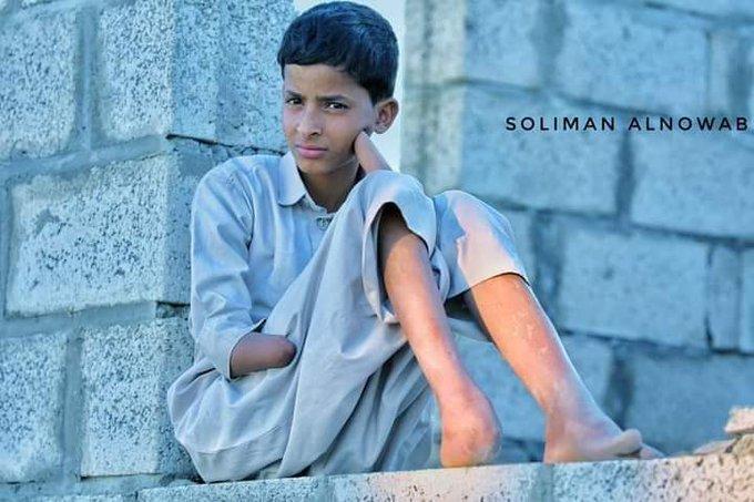 طفل بُترت أطرافه بلغم زرعه #الحوثيون في محافظة #مأرب.. @USAbilAraby @FCDOArabic @almaniadiplo @francediplo_AR @UNarabic @EUinYemen @ExtSpoxEU @AnnLinde @MiguelBergerAA @planungsstab @GERMANYonUN  #الحوثي_منظمة_ارهابية #HouthiTerrorismInYemen