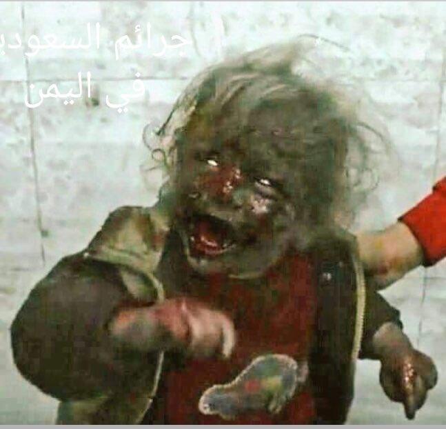 سنوات وصمودكم نصر مبين  سيبقى 🇾🇪 اليمن  وانتم ياأطفال يمننا الحزين  ستكونوا كآية في القرآن الكريم  اخرها صدق الله العلي العظيم  #DayofAction4Yemen