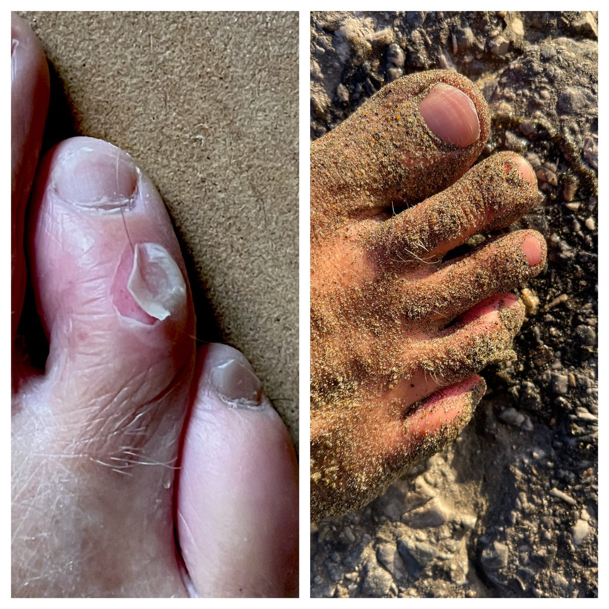 Only one thing worse than ripping a hole in your foot from kicking too hard with fins on....filling it up with salt and sand <3  #nopainnogain #ouch #surf #sail #sand #salt