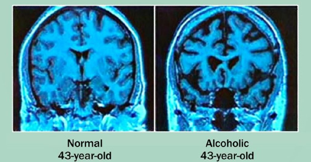 Heavy drinking can have a direct effect on certain parts of your body and on your mental health as you get older. And it can have some unhealthy indirect effects, as well.