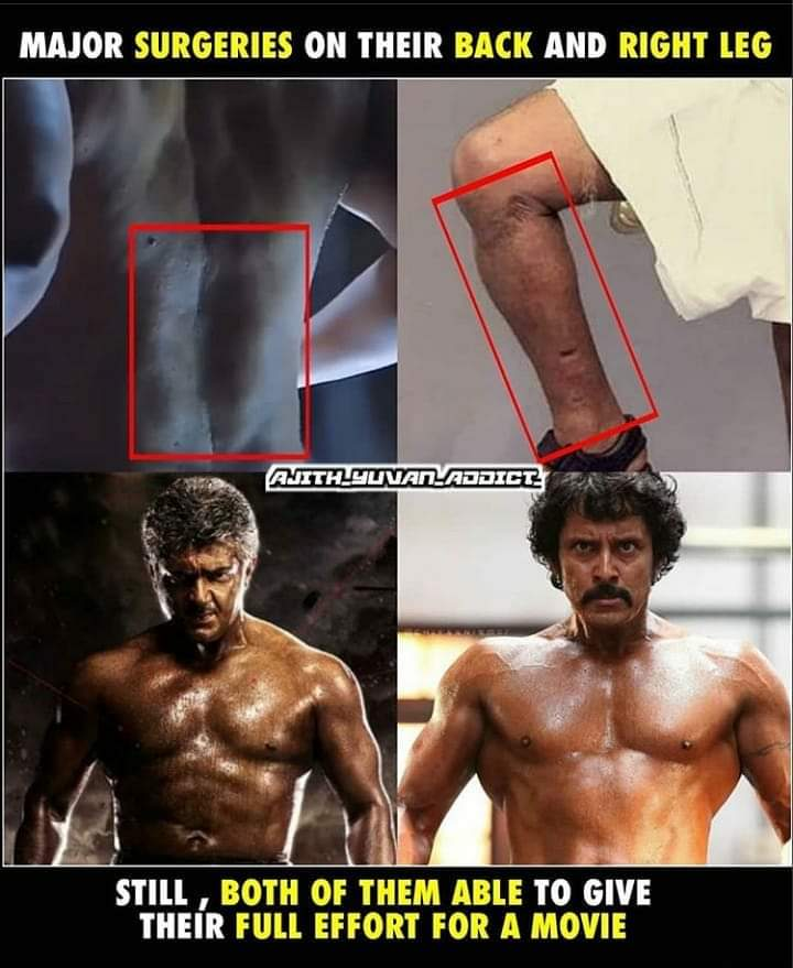 Major Surgery for Thala in Spinal Cord and for Vikram in Right Leg..  Still they put their maximum effort for a movie!   Dedication level 🔥🔥  #Cobra #Valimai