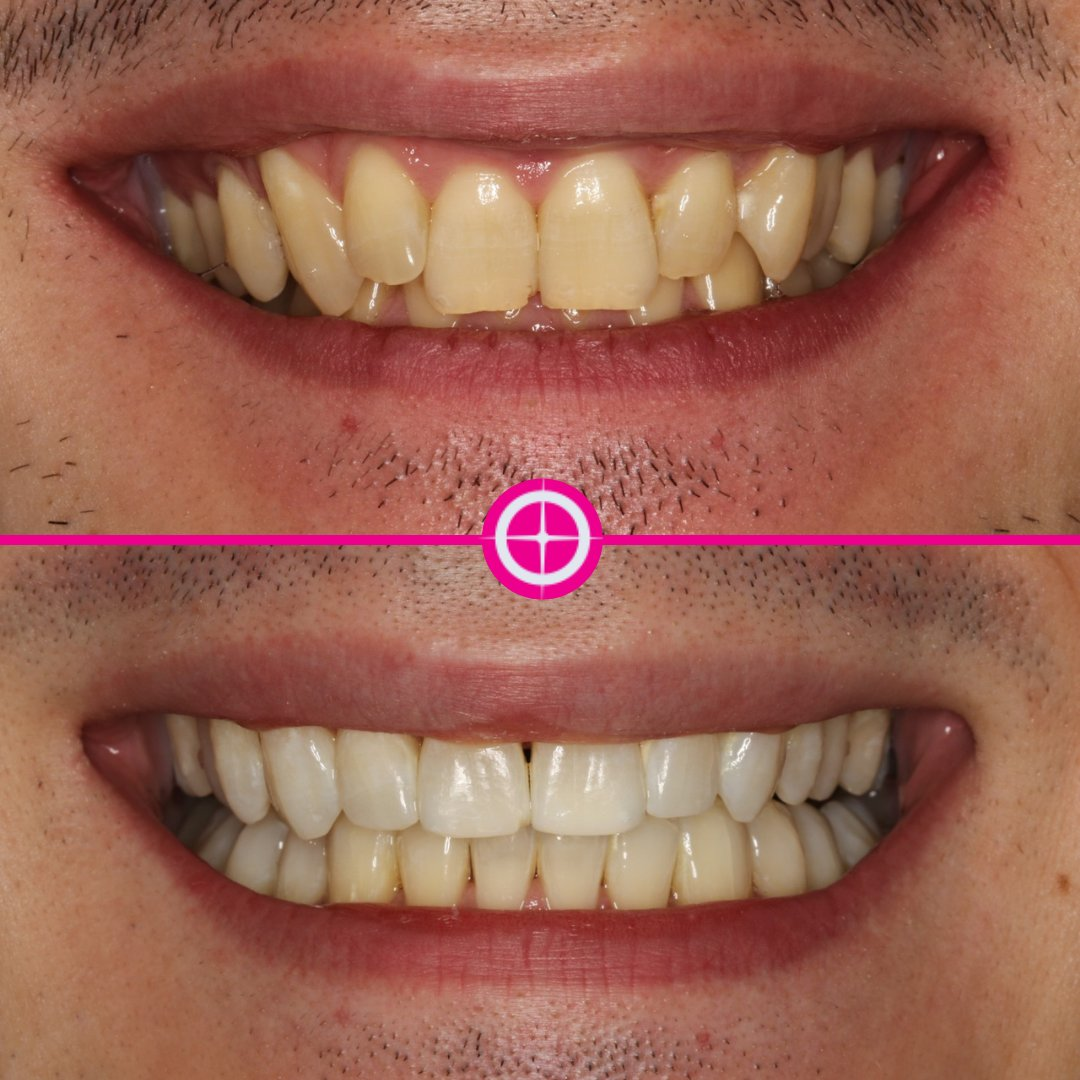 Fast Track Braces upper and lower and Enlighten Premium Whitening = straight white smile.  Book your #Free smile consultation by calling us on 0117 973 1910⁠. ⁠ #PainFree #Smile #TeethWhitening #Whitening #Teeth #Bristol #BristolDentist #Clifton #DentalHygiene