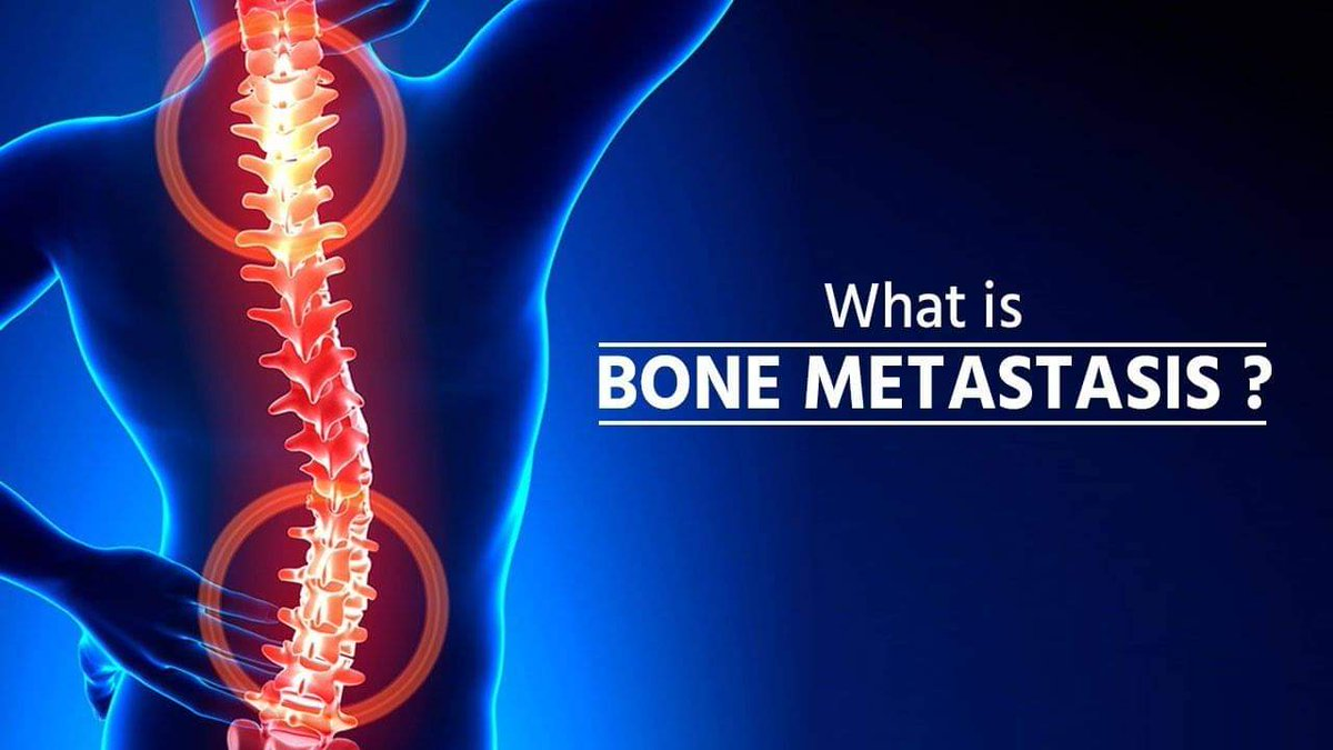 What is bone metastasis, and what are the treatment options?   Have any questions? Contact us for more  details.  . . . . . . #pharmaserve #pharmablog #love #instagood #photooftheday #fashion #beautiful #happy #cute #tbt #like4like