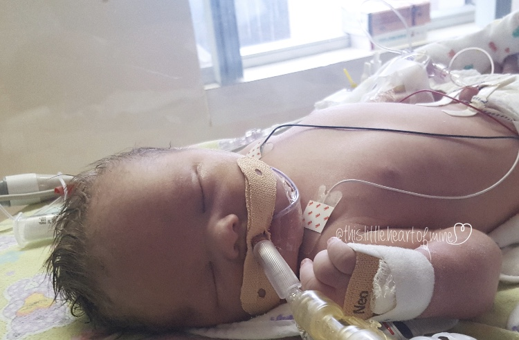 Ella was born with a rare heart condition + had 2 rounds of heart surgery before she was 6-m-o. Ella will need Childrens as she grows + her family is grateful for its skilled staff + top-of-the-line equipment. Help kids like Ella: ow.ly/rYaj50DfUi3 #Continuecaringforkids