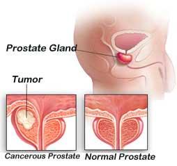 #erectioninsurrection #prostateMilking #prostate #ProstateCancer #hypertension #BloodPressure #obesity #menshealth #HealthAndWellness #medicaldevice #Doctor #urology #alcoholawareness #diabetes #depression #Mentalhealth #infertility #MentalHealthAwareness