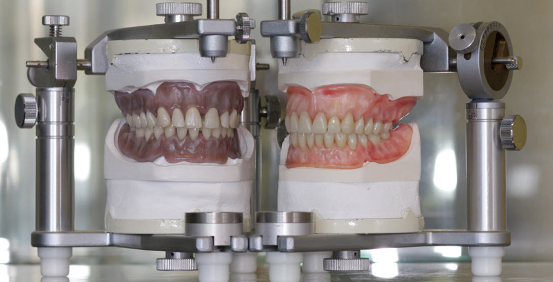 Check out the quality of our True To Life #dentures produced in our UK lab @OakviewDental1  Includes tissue colour mapping using digital photography and individual tooth and gum characterisation. #Dentists #dentalcare #WednesdayMotivation