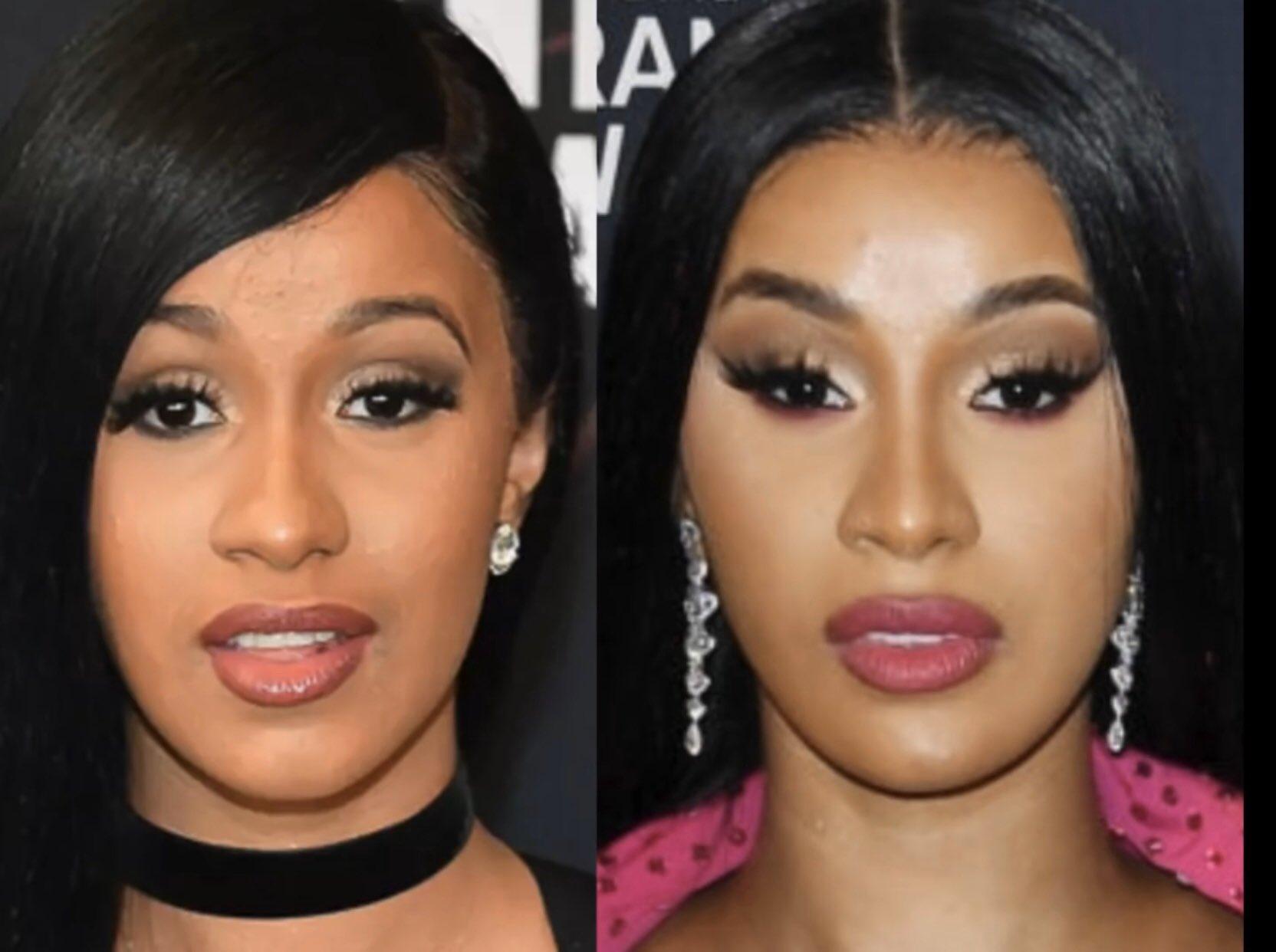 Cardi B Face Plastic Surgery Break Down | Lipstick Alley