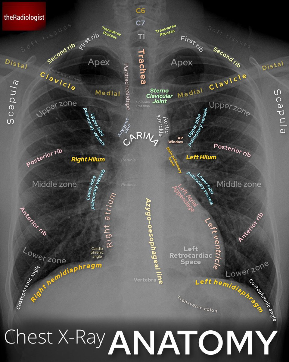 Chest X-ray  ANATOMY. https://t.co/JYUMnh4sEH