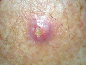 Confluent and reticulated papillomatosis dermnet nz - Papilloma dermnet nz - Wart treatment dermnet
