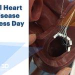 Image for the Tweet beginning: In honor of #HeartValveDiseaseAwareness Day,