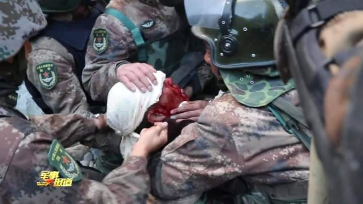 Injured Chinese army soldier