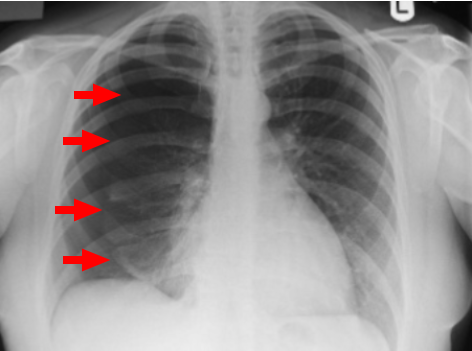 1/🧵 Why does catamenial pneumothorax (pneumothorax that recurs with menstruation) almost always occur on the right side?   Why doesn't it affect both sides of the chest equally?  #medtwitter #tweetorial https://t.co/4CBWiYxbSH