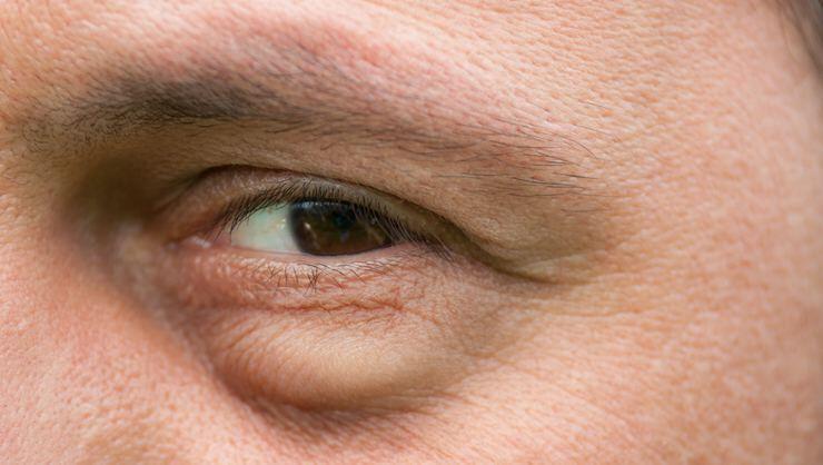 50 yaş üzerindeki kişilere önemli uyarı: Gözlerdeki bu belirtileri ihmal etmeyin!