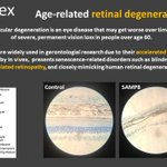 Image for the Tweet beginning: Age-related retinal degeneration is the