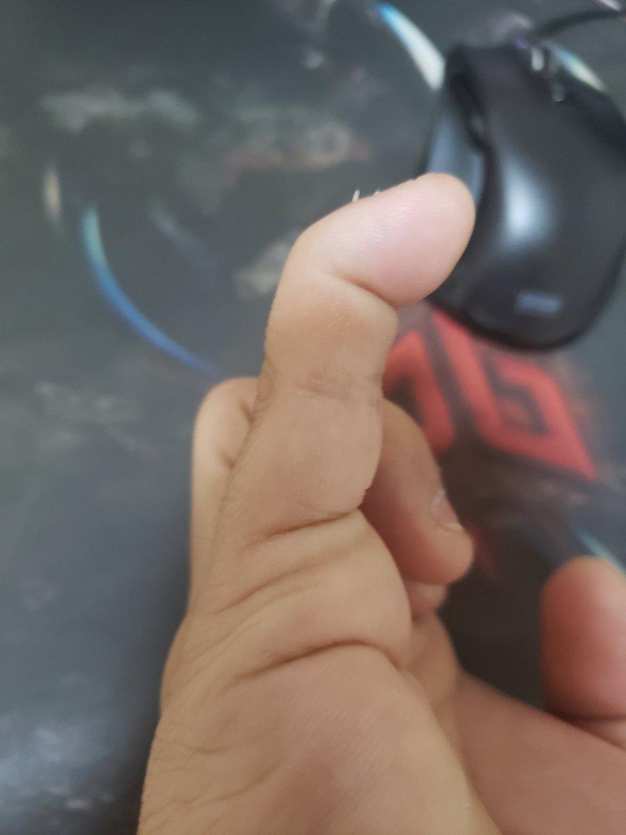 手の指の第一関節だけが曲げられる!?どうなってるの