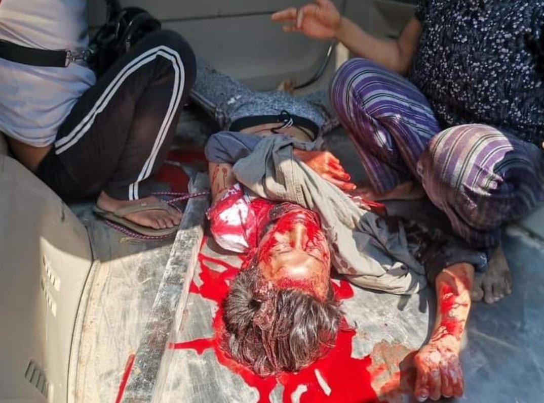 3.3日 缅甸密宁延,一名十四岁的男孩,被军方虐杀,头部,颈部中弹,并遭到枪刺挑杀