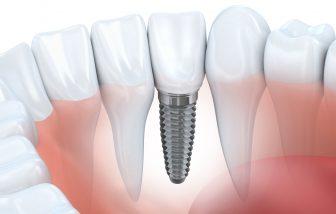 How Long Will Dental Implants Last?  #Dentist #Implant #Smile #Teeth