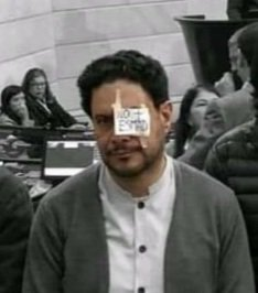 RT @AndyPelinegra: Cómo te quedó el ojo??...