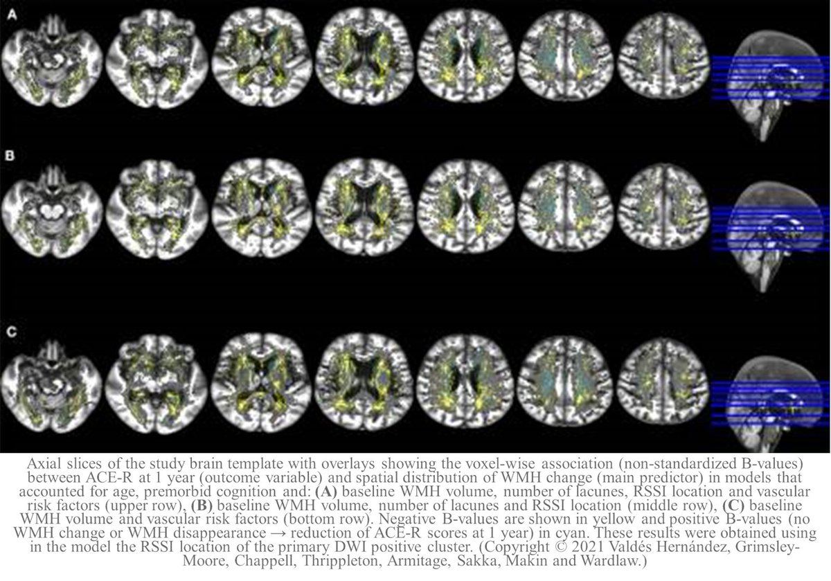 "🆕News from our @SVDs_at_target project:  ""Post-stroke Cognition at 1 and 3 Years Is Influenced by the Location of #WhiteMatterHyperintensities in Patients With #LacunarStroke""  Article by the @EdinUniImaging team.  #ischemicstroke #SmallVessels 👉 https://t.co/ie17MOtp0H"