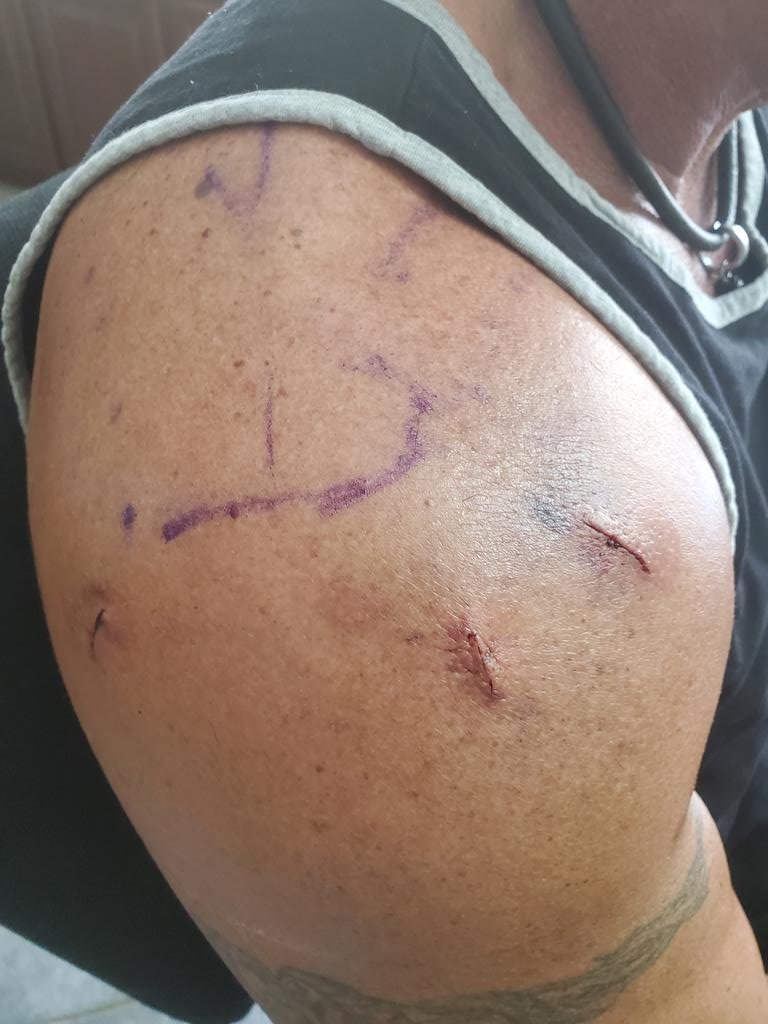 My right shoulder after surgery 2 days ago....next week will be my left side... https://t.co/DvcDBp7lRb