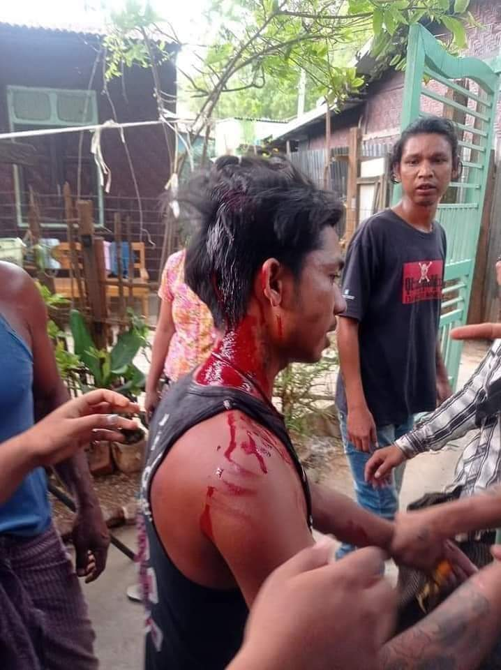 #WhatsHappeningInMyanmar #Apr13Coup #savemyanmarfrommilitarycoup  At least 5 people were shot dead. In Myit Nge, Mandalay city of Myanmar. https://t.co/lhS52HwMJJ https://t.co/uIum00SnCc