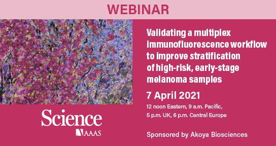 "ScienceMagazine: Join #ScienceWebinars on 7 April at 12 noon ET for ""Validating a #multiplex immunofluorescence workflow to improve stratification of high-risk, early-stage melanoma samples.""  Register today and join us on Wednesday for the broadcast!  #webinar"