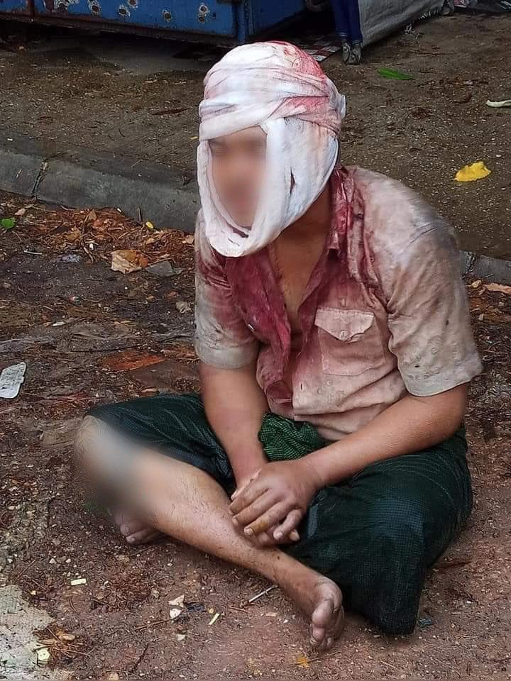 #Apr5Coup Maha Bandula Road, Yangon  SAC junta violence: Man from Dawphon township beaten up badly around the head.   #WhatshappeningInMyanmar https://t.co/v294Q6RJVq https://t.co/JfNXC1lIYR