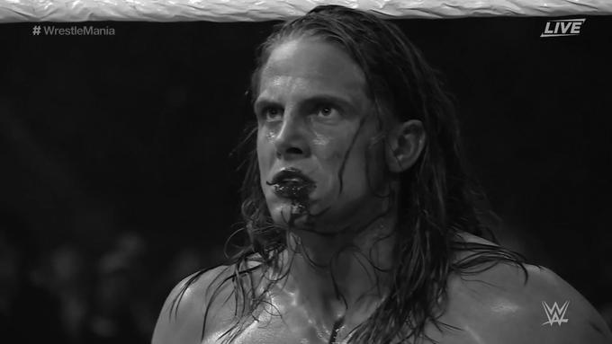 Así quedó Riddle tras la lucha con Sheamus.