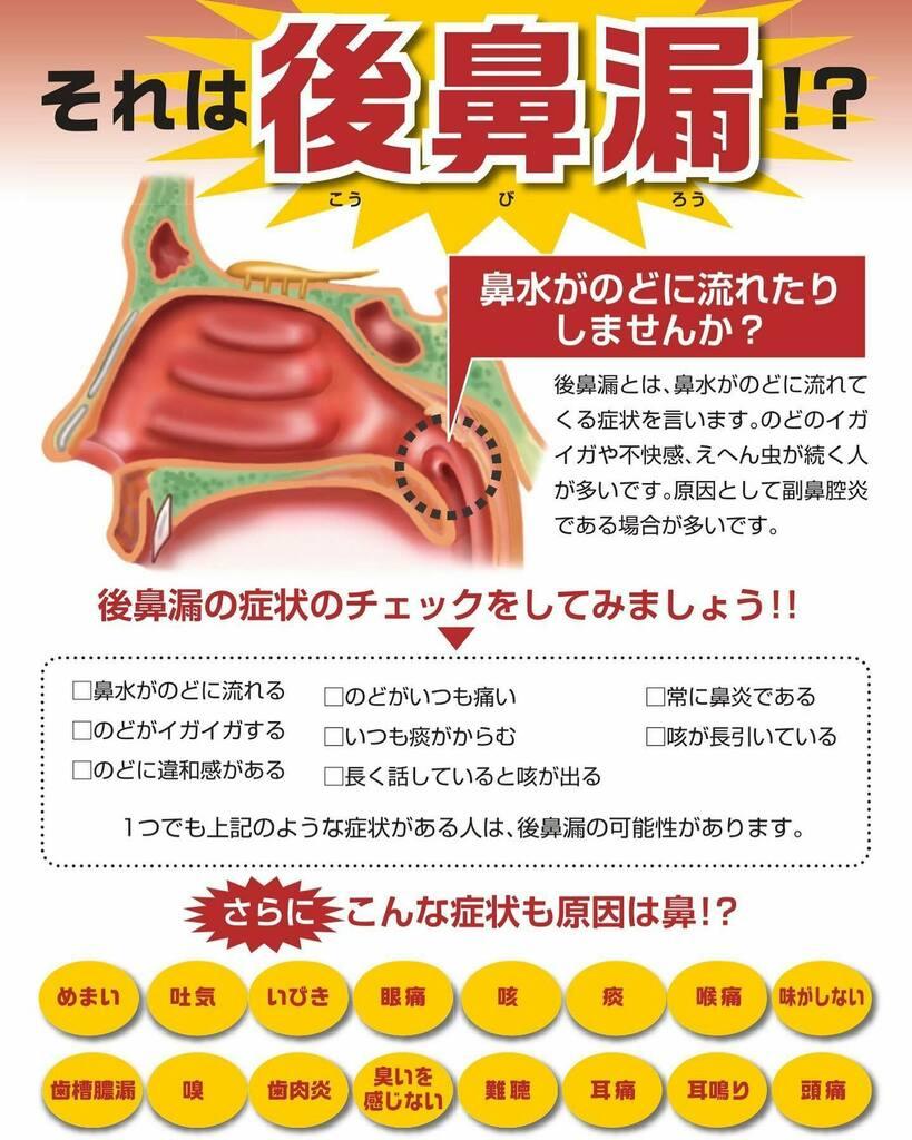 に が 食後 絡む たん 痰が絡む原因とは?食後に起きる痰の絡みの対処法を教えて!