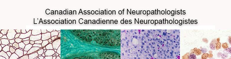 NeuropathCANP photo