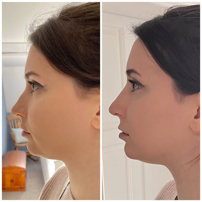 1 pic. Okay so, I got a tiny bit of nose filler done!!!  I've hated the bump in my nose for as long as