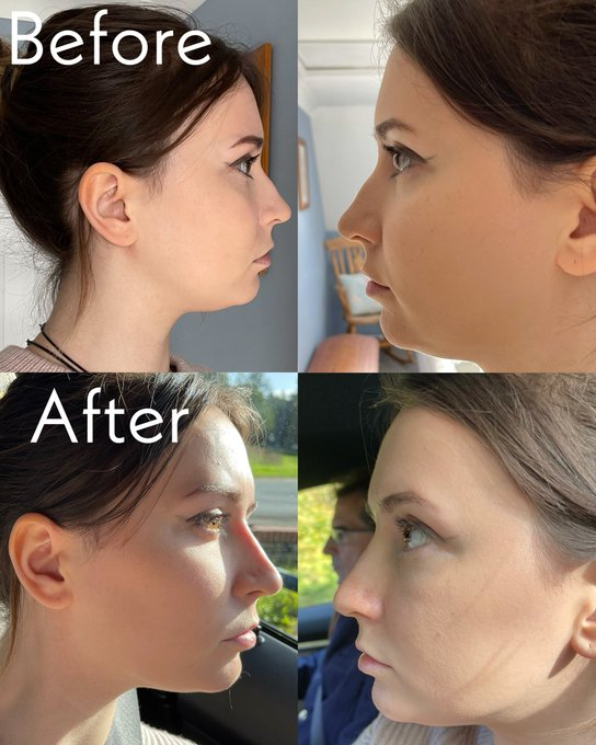 2 pic. Okay so, I got a tiny bit of nose filler done!!!  I've hated the bump in my nose for as long as