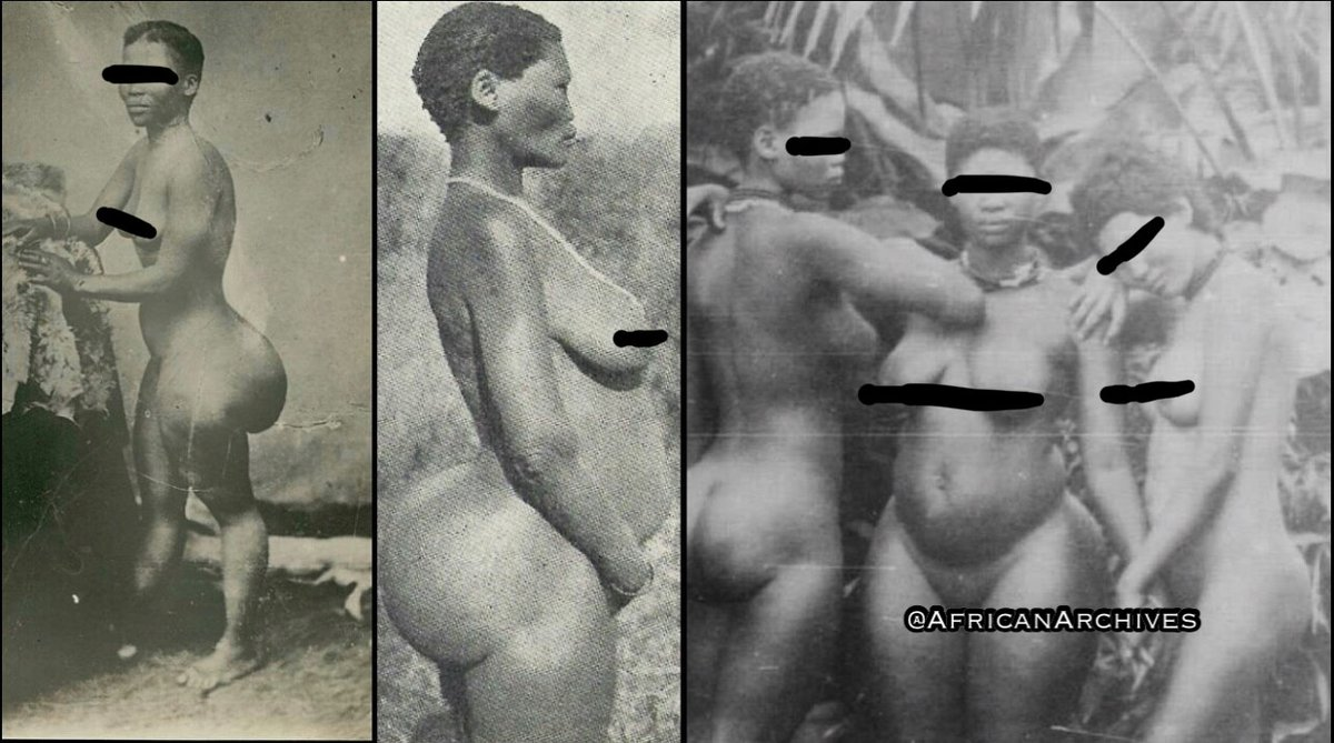 Nude photos of khoikhoi women with steatopygia were collected by white colonialists. Steatopygia is the accumulation of large amounts of fat on the buttocks, especially as a normal condition in the Khoikhoi of Southern Africa.