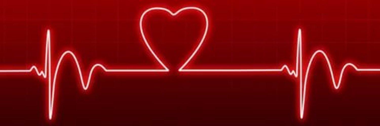 Картинка кардиограммы остановка сердца