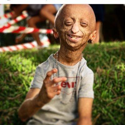 Progeria Progria1 Twitter