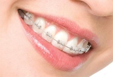 remove mouth braces prices