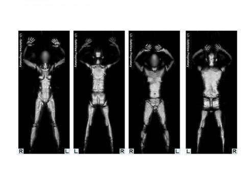 Porn x-ray Xray Porn