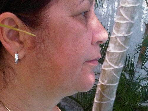 Linea Nigra And Pregnancy | BabyMed.com