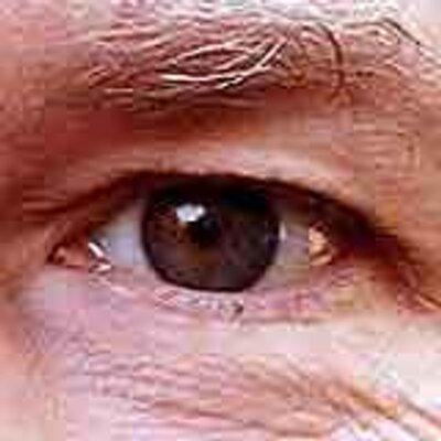 Eye 400x400
