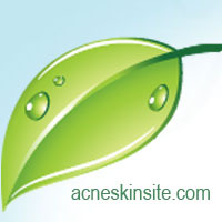 AcneSkinSite