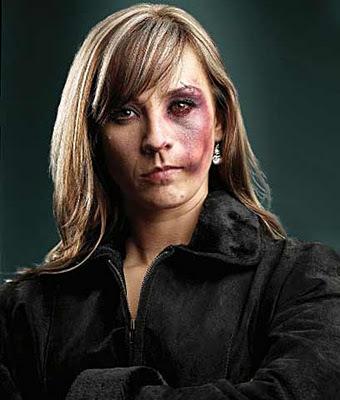 fotos de mujeres golpeadas: