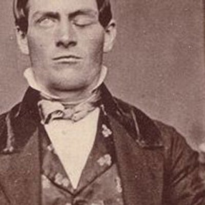 The Phineas Gage story